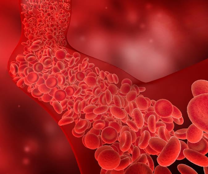 Angioplastía con balón ICVP