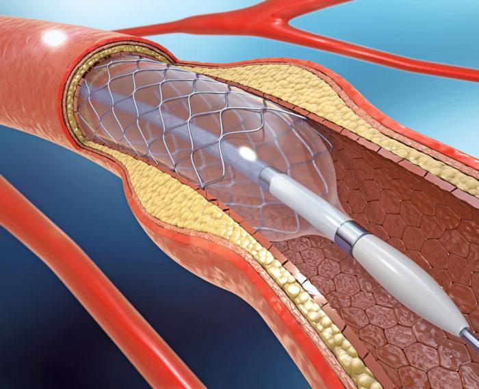 Colocación stent