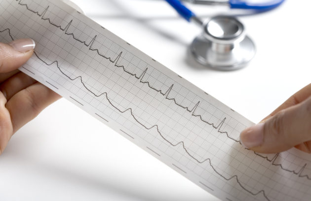 La exploración física en las urgencias cardiovasculares